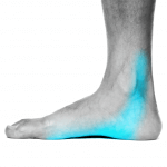 Post-Tin medial ankle pain ace podiatry gold coast