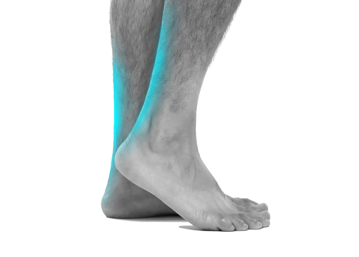 achillies tendonitis ace podiatry gold coast
