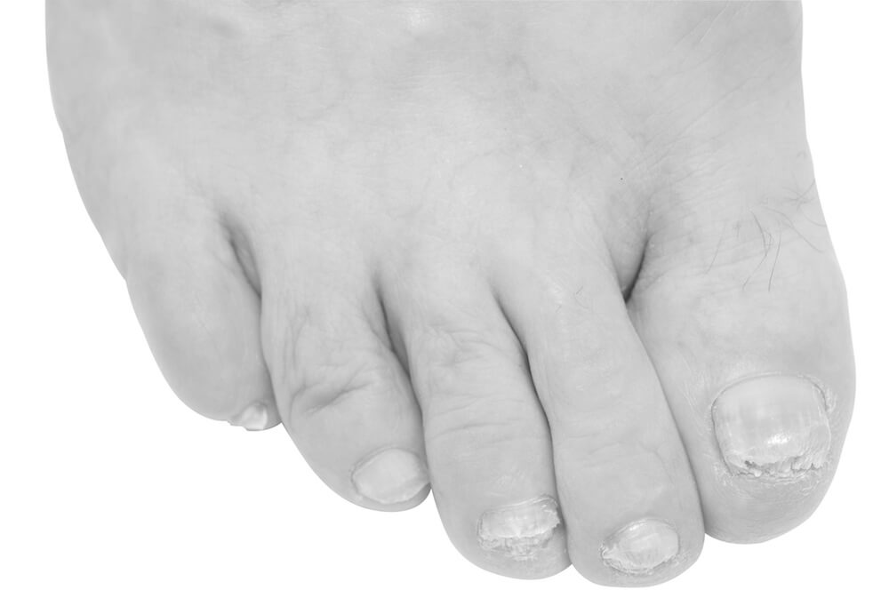 fungal toenail ace podiatry gold coast