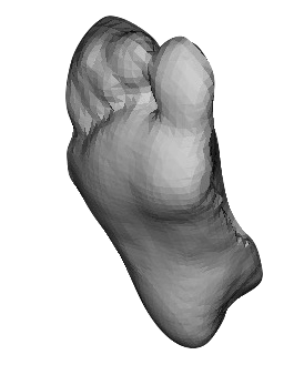 3D foot scan ace podiatry gold coast
