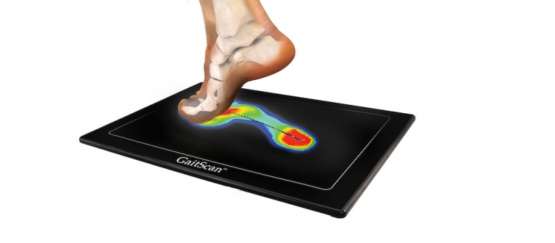 gait analysis ace podiatry gold coast