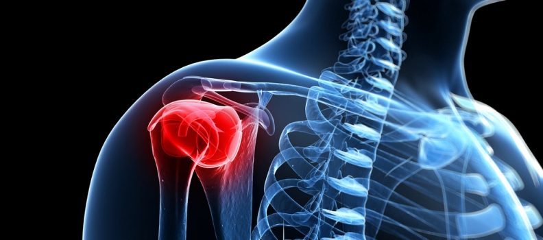 Rotator Cuff Injuries – Ace Podiatry, Gold Coast