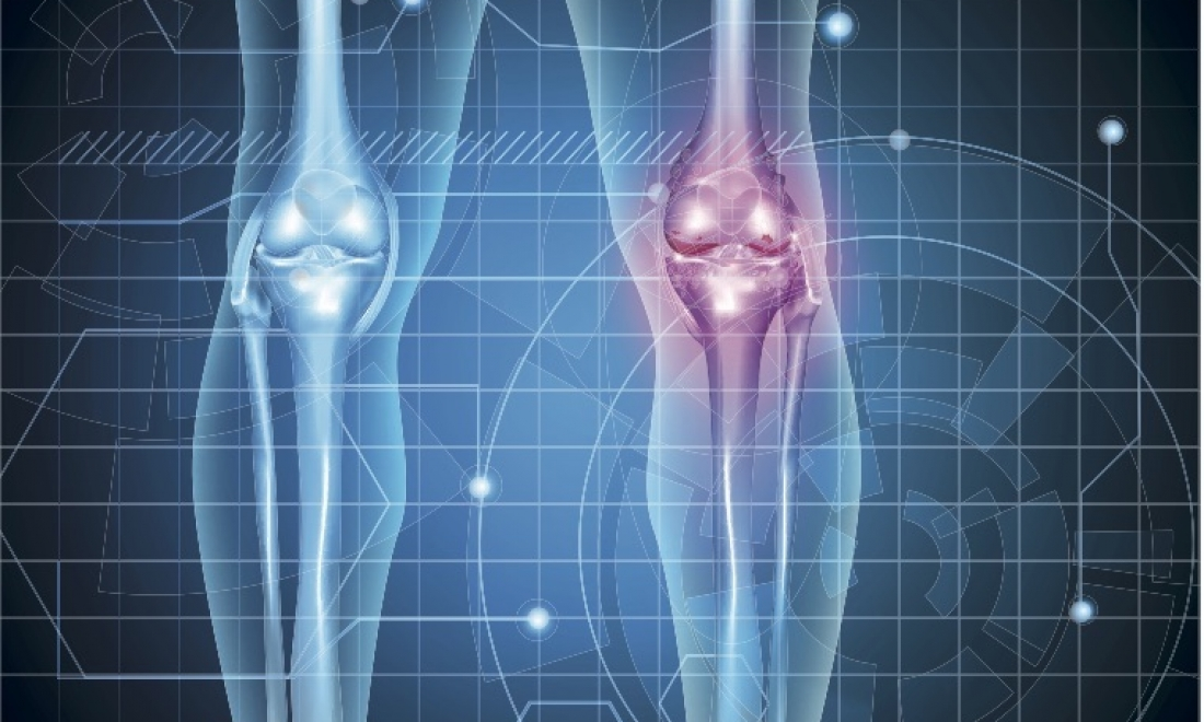 Preventing and treating your unwanted knee arthritis pain – Ace Podiatry, Gold Coast