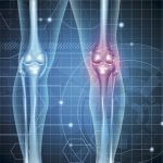 knee arthritis - ace podiatry gold coast